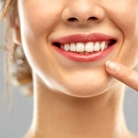 woman pointing to her straight white teeth