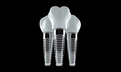 Get the costs of dental implants in Dallas call 214.352.2777