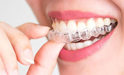 Use Invisalign to Align Your Bite fast