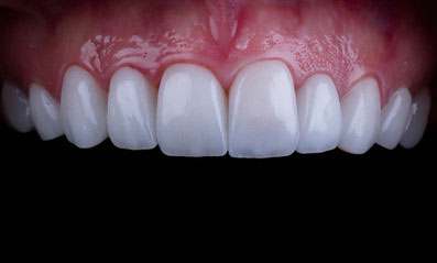 Get a beautiful, bright natural-looking new smile with Veneers