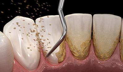 scaling and root planing is an effective periodontal disease technique